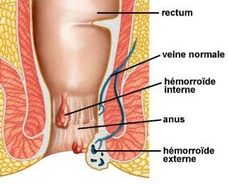 shéma hémorroïdes