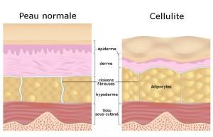schema_cellulite
