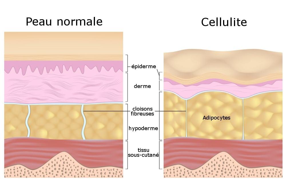 Cellulite Comment Traiter Efficacement La Cellulite