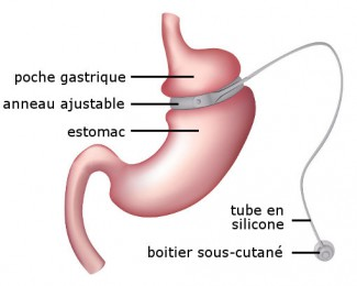 chirurgie-obesite_anneau-gastrique