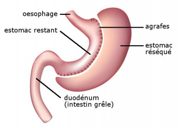 chirurgie-obesite_gastrectomie