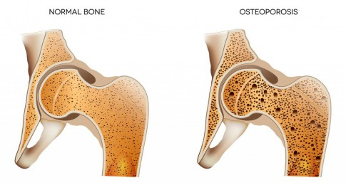 osteoporose_illustration_135507929